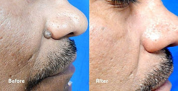 Wart%20Removal%20-%20Beau%20Synergy%20Lt