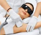 Laser/IPL Hair Removal u/lip
