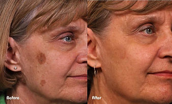 Pigmentation Face - Beau Synergy.jpg
