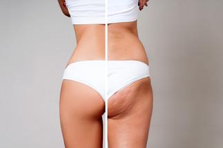 Despídete de la celulitis sin más complicaciones Inicia este año con una piel renovada