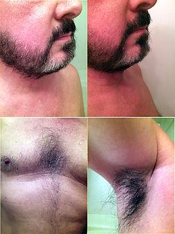 Nicholas after using dark brown natural beard dye