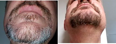 Rod Harper before and after natural beard ye