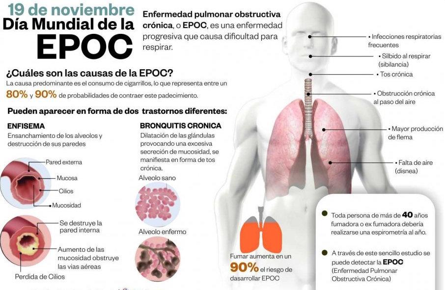 EPOC, La Vida Biloba Salud