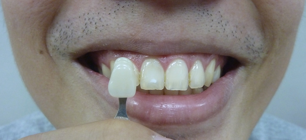 internal bleaching tooth whitening post-op shade C1