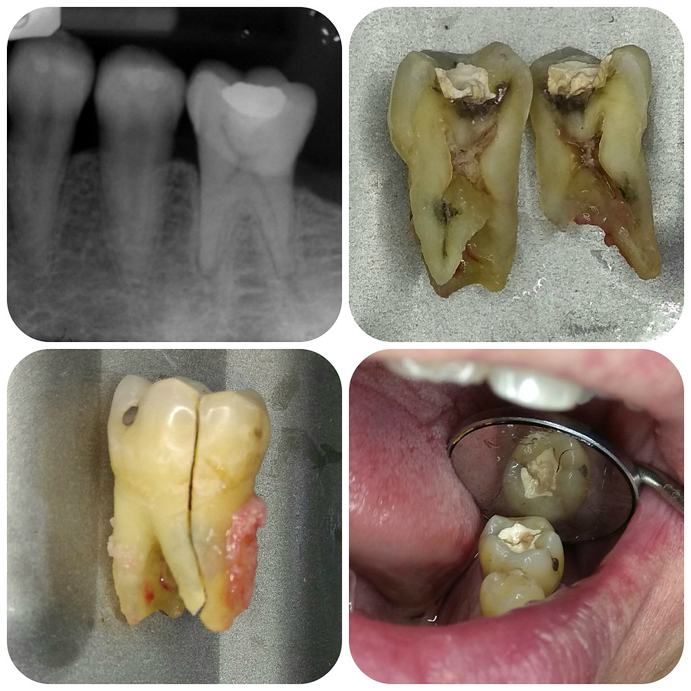 vertical tooth fracture - s.chua 2-18-2018