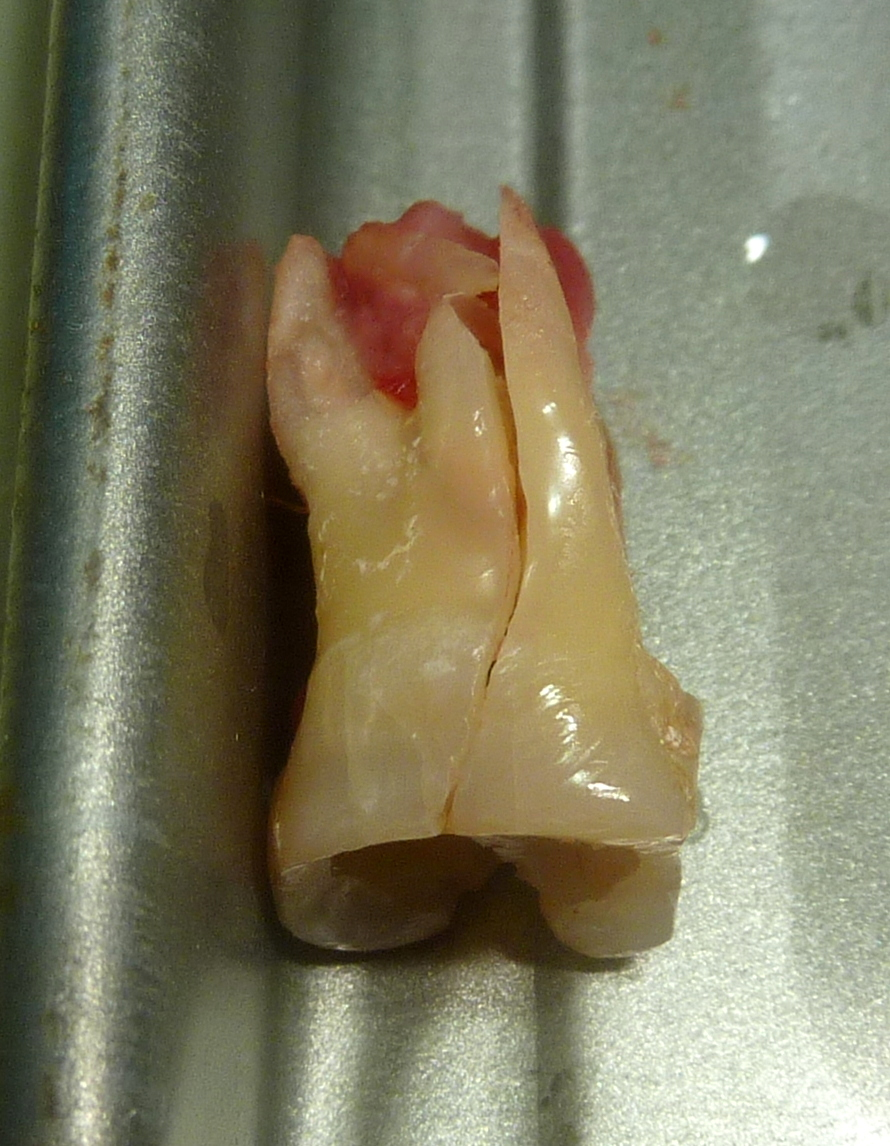 tooth extraction of fractured tooth