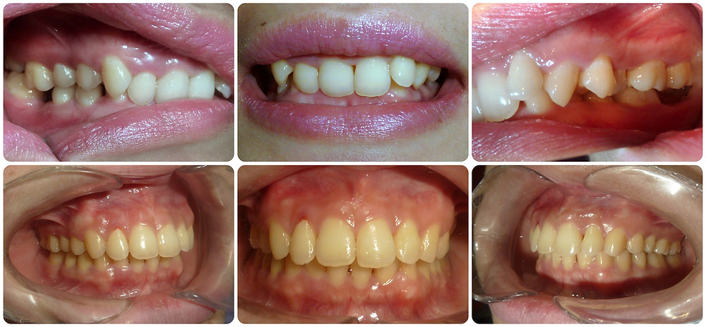 deep bite case - before and after treatment