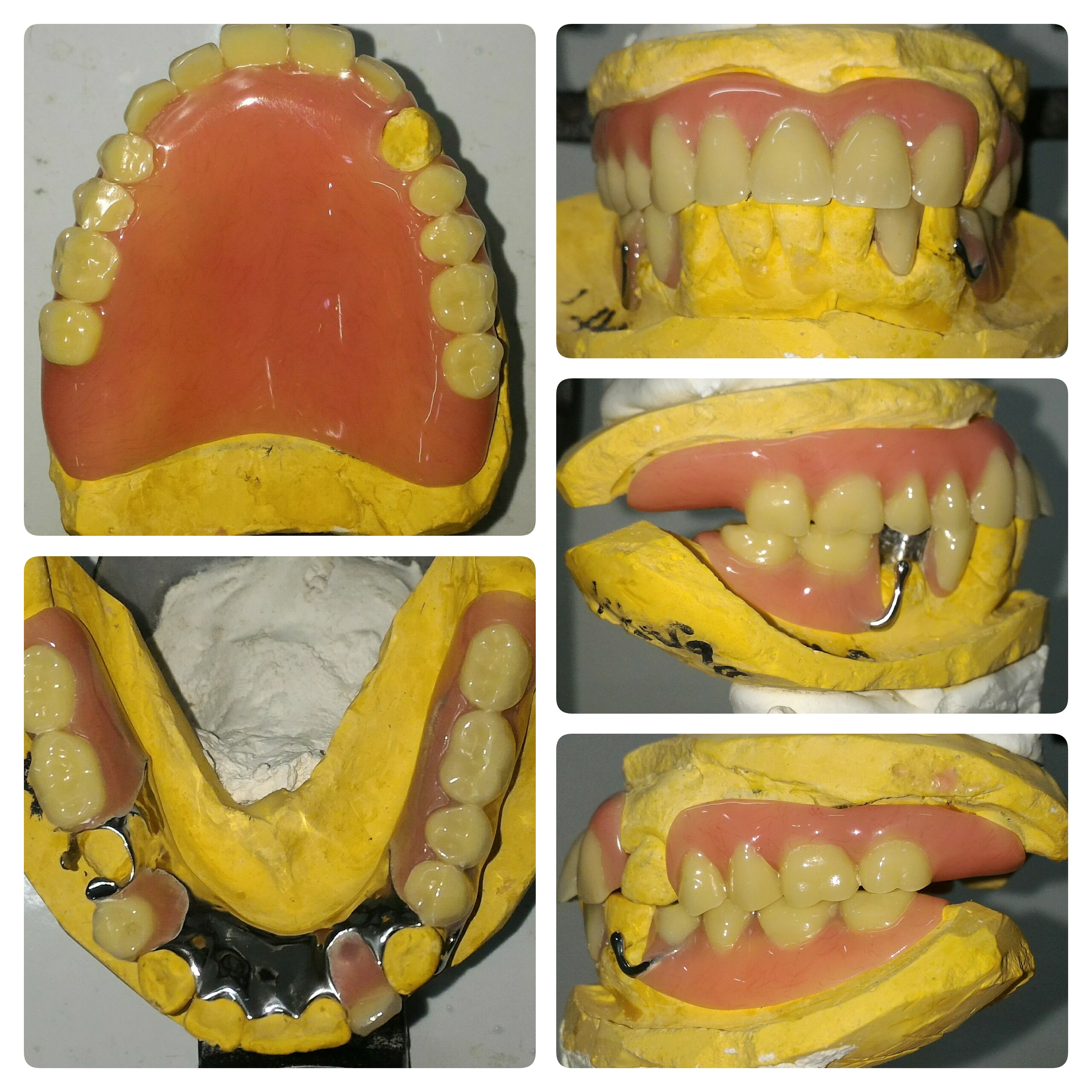 r.catalan denture collage plain