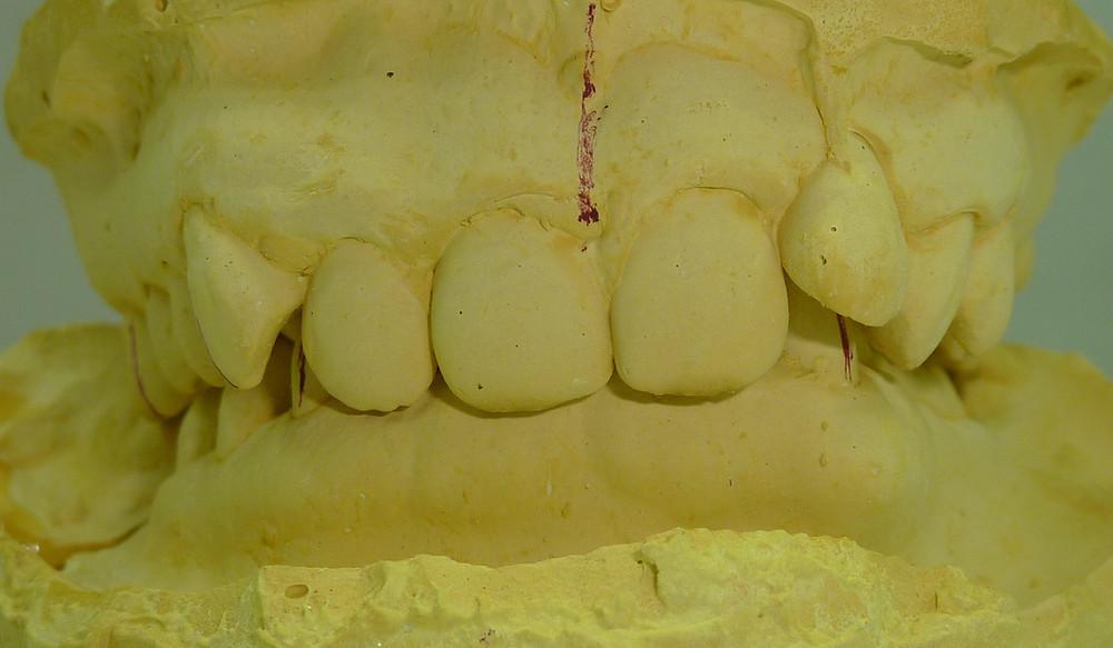 sample of extreme deep bite case