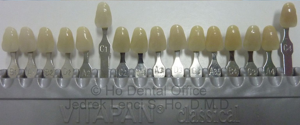vita dental shade guide