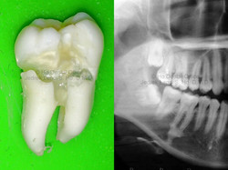 impacted lower wisdom tooth