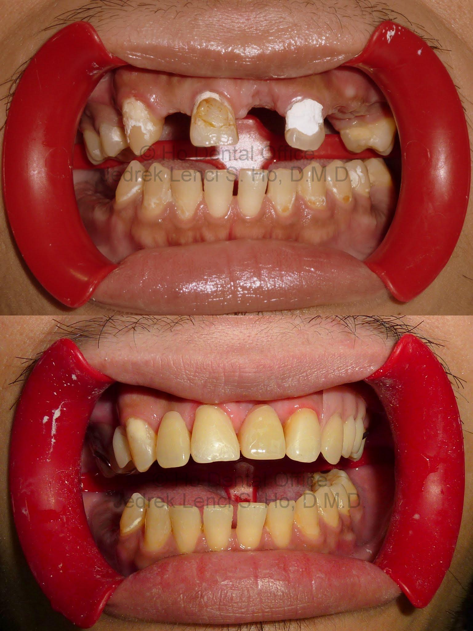 aesthetic tooth restoration + dentures