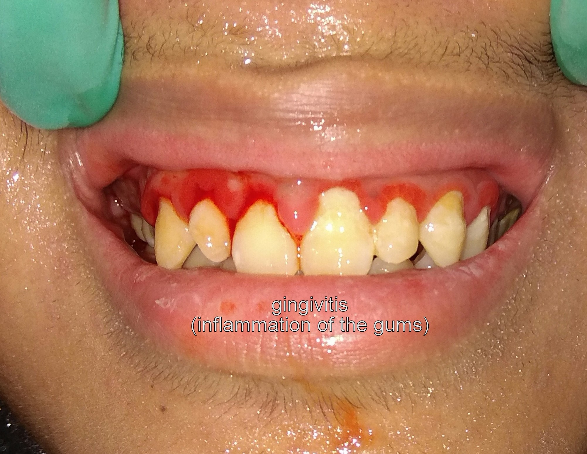 gingivitis can be prevented