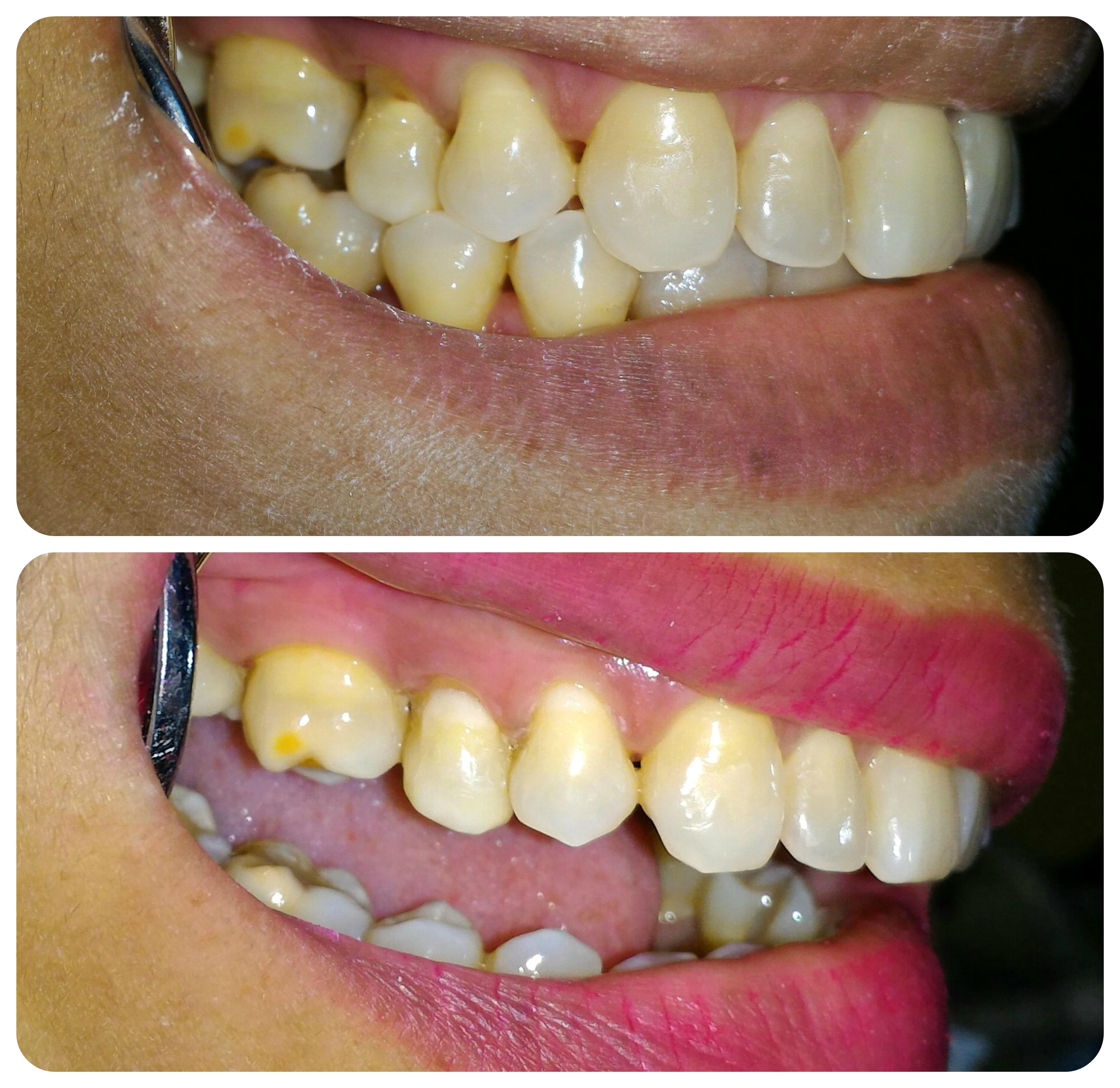 restoration of toothbrush abrasion