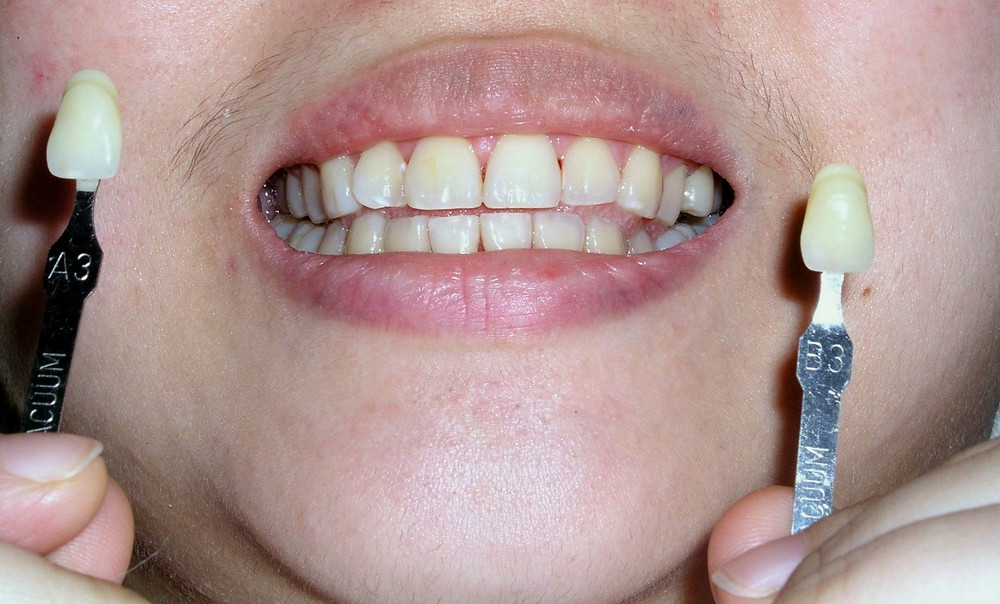 conventional bleaching tooth whitening pre-op shade A3