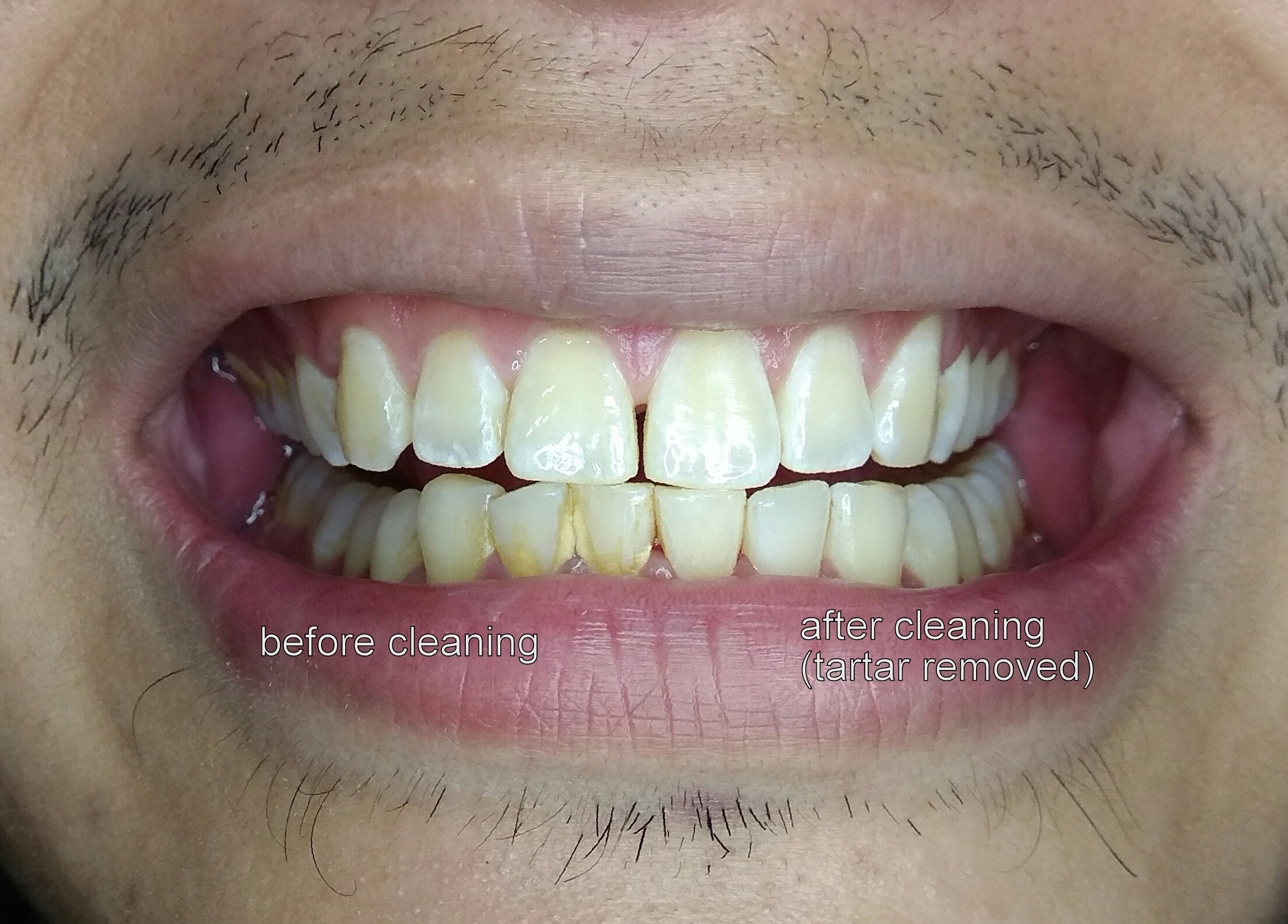 oral prophylaxis - before and after