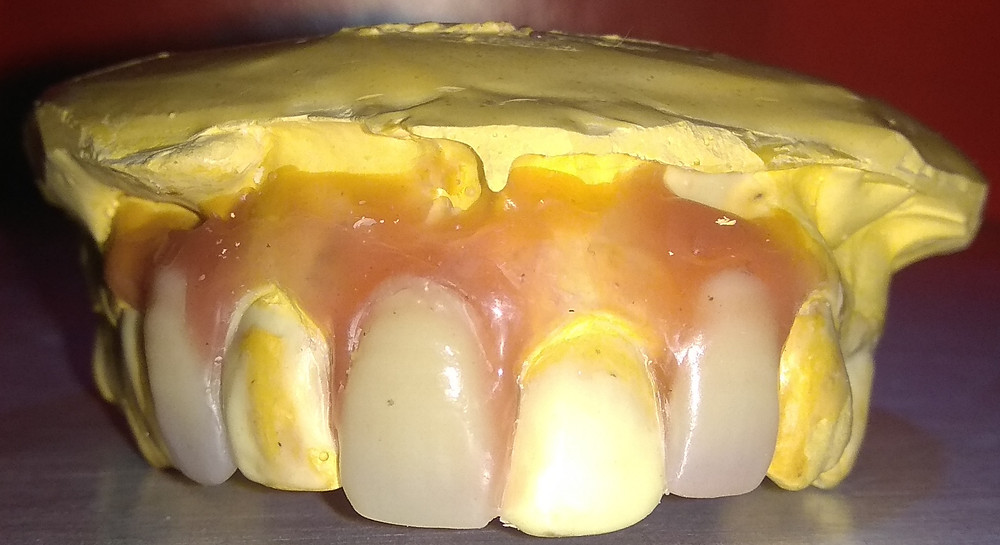 dental model of patient with set pontics and waxup