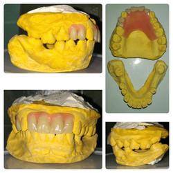 m. alba denture collage plain