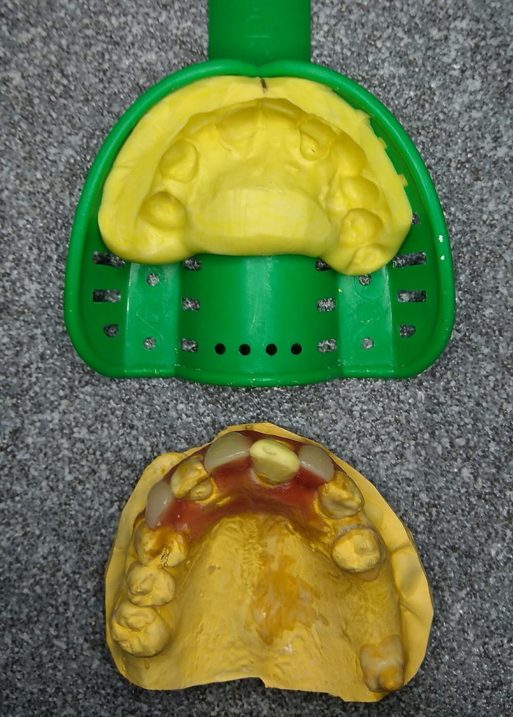rubber impression of dental model with set pontics