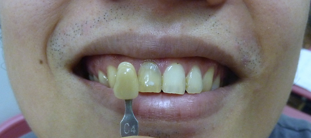 internal bleaching tooth whitening pre-op shade C4