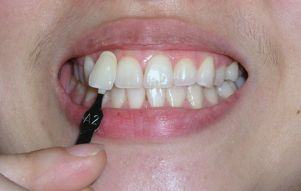 conventional bleaching tooth whitening post-op shade A2