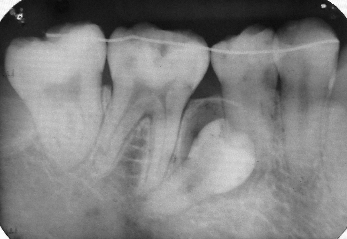 impacted premolar