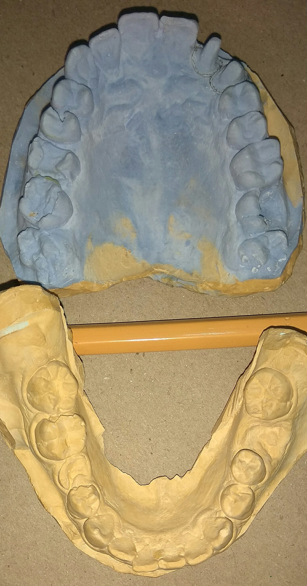 y.o. upper and lower dental model