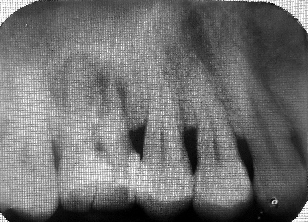 fractured molar tooth with sinus approximation, root canal treated