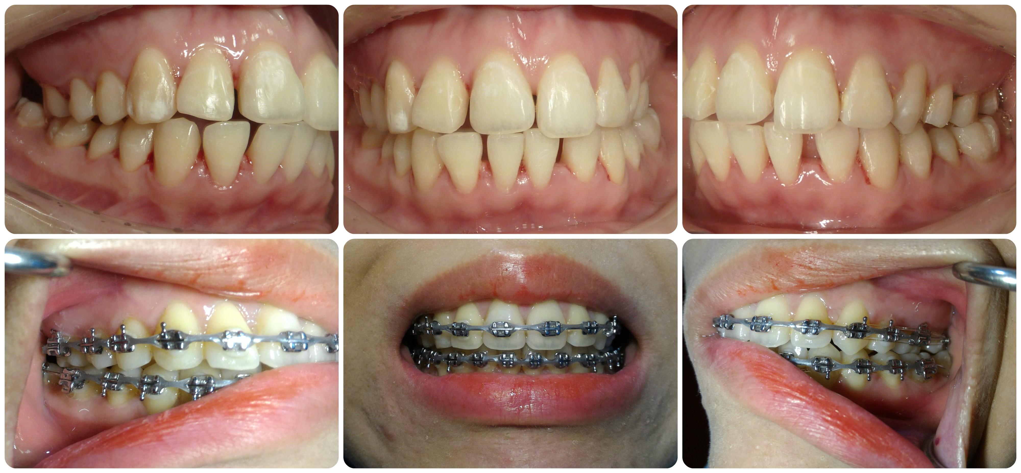 ortho collage plain