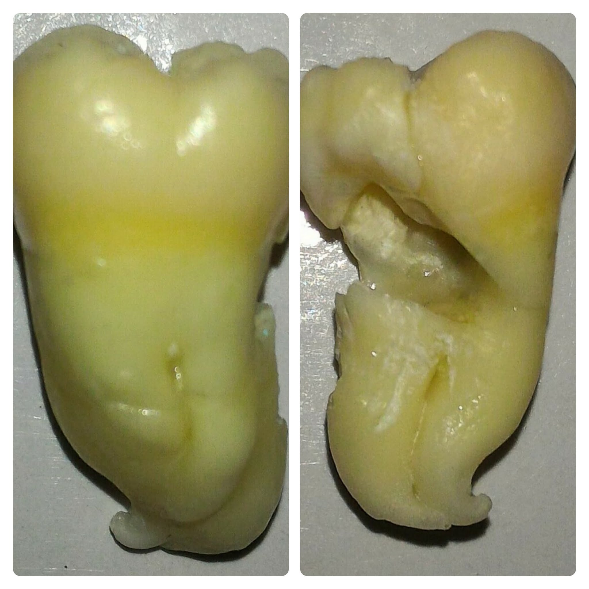 specimen of extracted wisdom tooth