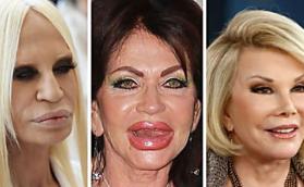 kozmetička hirurgija ? evo deformisane zvezde!