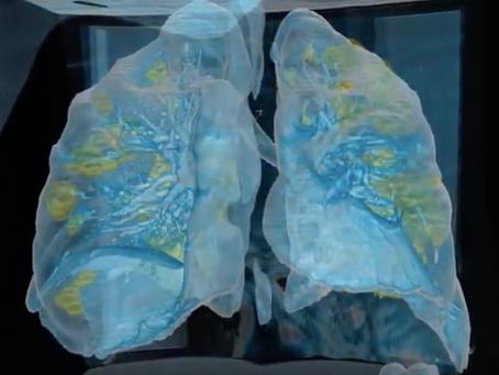 3d simulacija Covid19 (SARS-CoV-2) kako se siri u plucima