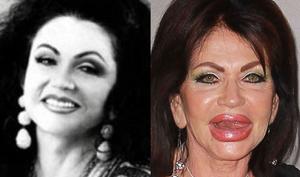 botox za lice