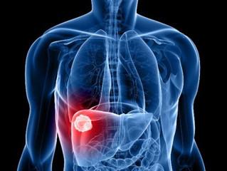 O que são hepatites?