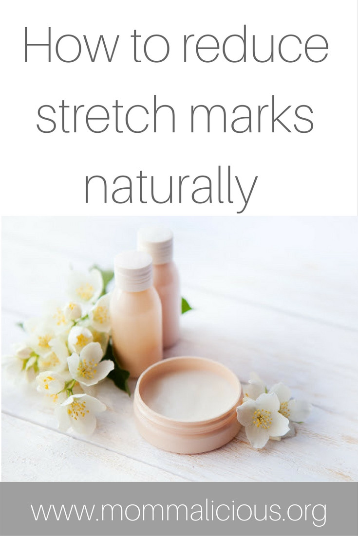 how to reduce stretch marks