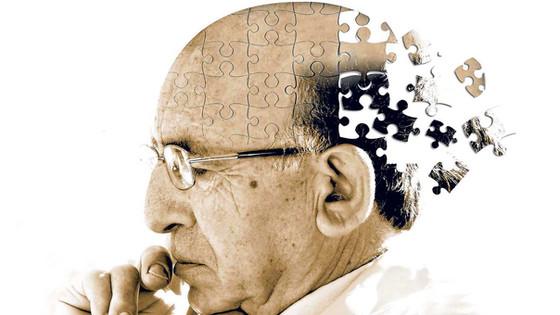 Alzheimer's disease and dementia.
