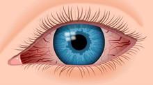 Epidemic Keratoconjunctivitis (EKC)