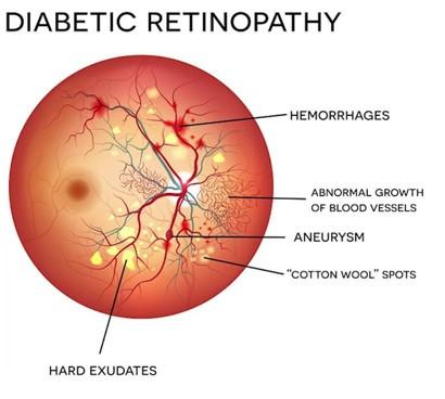 Diabetic Retinopathy Checklist