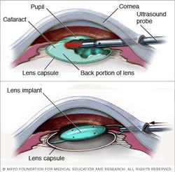 Cataract Extraction