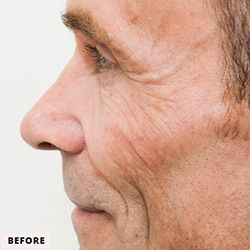CocoonFaceandBody-CooLifting-before-MALE