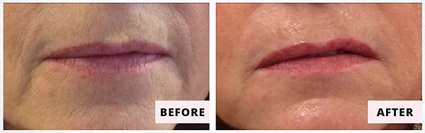 CocoonFaceandBody-CooLifting-beforeafter