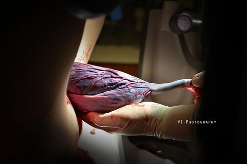 geboorte van de placenta