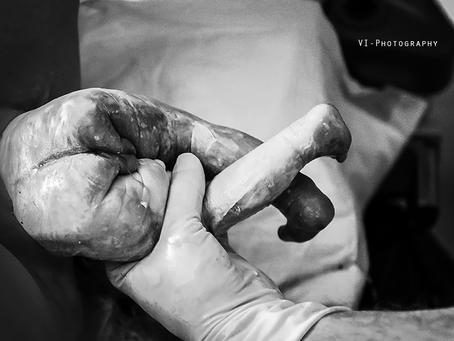 Met de voetjes eerst - een natuurlijke stuitbevalling in het ziekenhuis