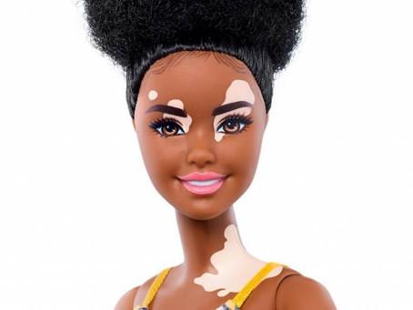Mattel lanza línea de muñecas Barbie con vitiligo para expandir la diversidad