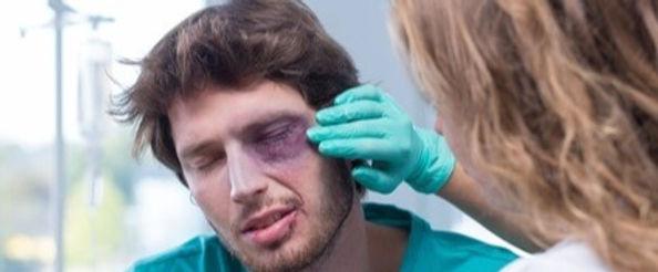 head-concussion-injury-brain-lawyer-hous