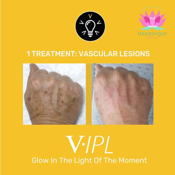 VIPL-04.jpg