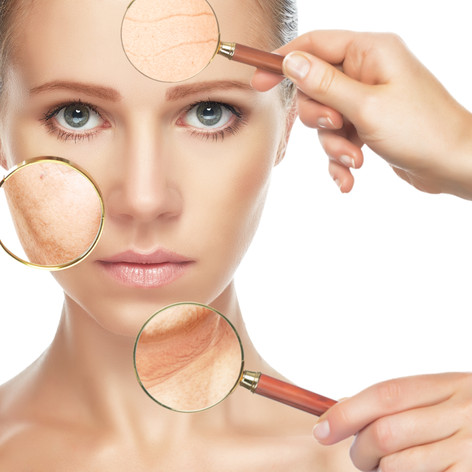 Radio Frequency Skin Lifting and Tightening