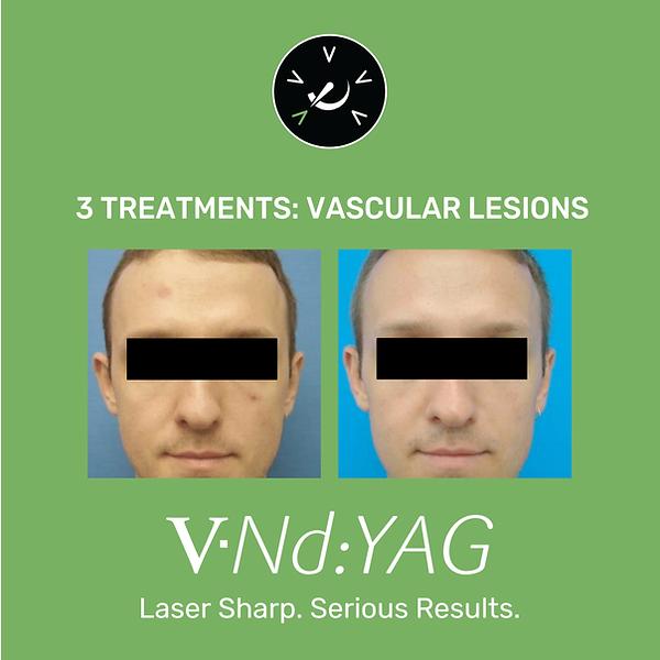 VNDYAG-02.png