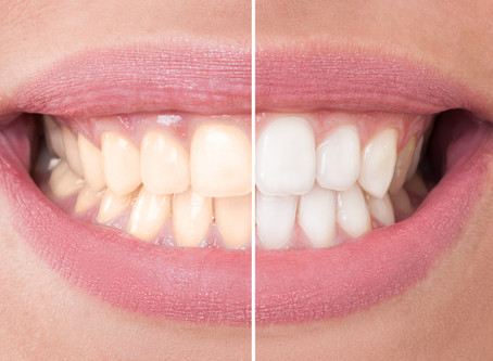In-Office or At-Home Teeth Whitening? What The Salem Dentists Recommend?!
