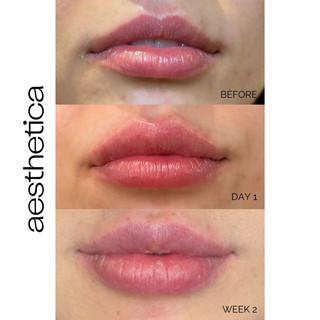 Chicago Aesthetica Clinic Lip Filler.jpg